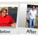 your-hcg-before-after_virginia